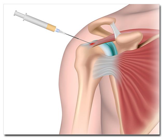 PRP-healing-process-3