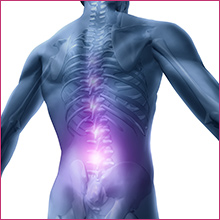 PRP therapy for chronic back pain.