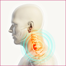 PRP therapy for chronic neck pain.