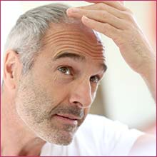 prp-for-hair-loss