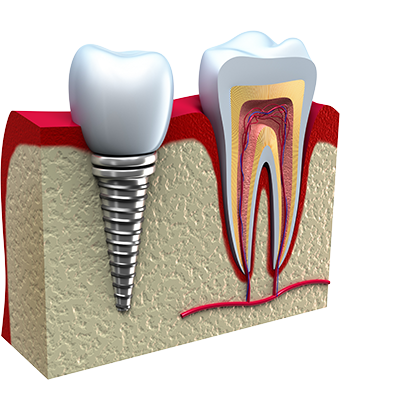 PRP with dental implants