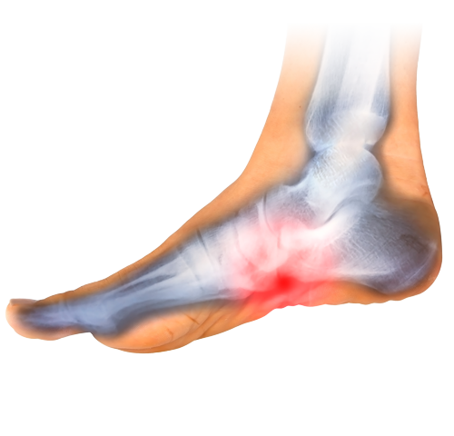 prp-foot-ankle-therapies