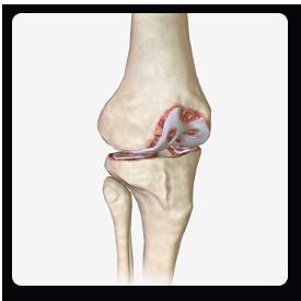 prp-pain-protocols