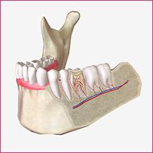 PRP in dental medicine.